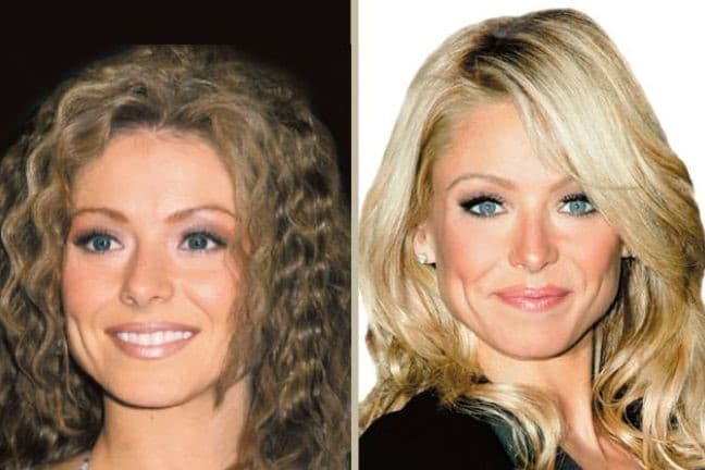 Kelly Wiglesworth Before And After Plastic Surgery photo - 1