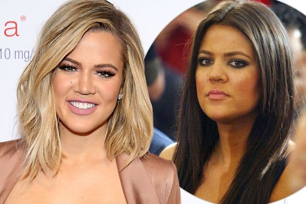 Khloe Kardashian Face Before After Plastic Surgery photo - 1