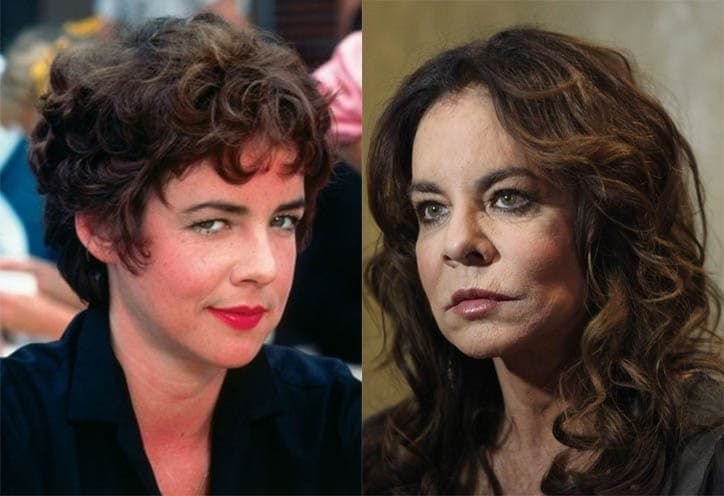 Stockard Channing Before And After Plastic Surgery photo - 1