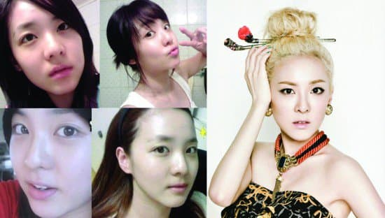 Ugly To Beautiful Plastic Surgery Before And After photo - 1