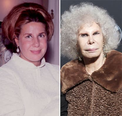 Duchess Of Alba Plastic Surgery Before And After 1