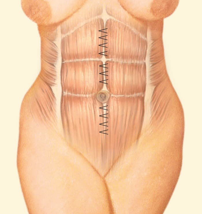 Internal Corset Plastic Surgery Before And After 1