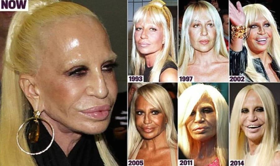 Worst Celebrity Plastic Surgery Before And After 1