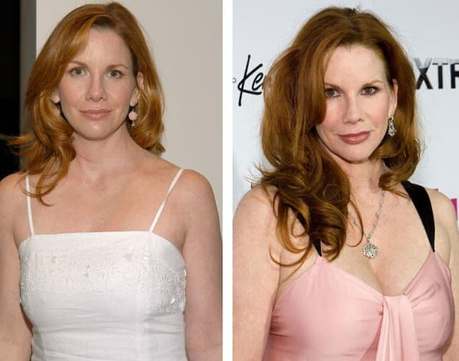 Melissa Gilbert Before And After Plastic Surgery 1