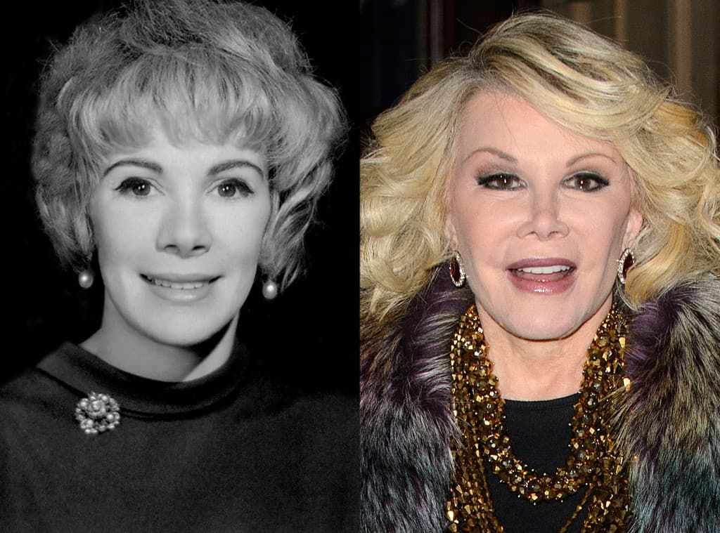 Melissa Rivers Before And After Plastic Surgery 1