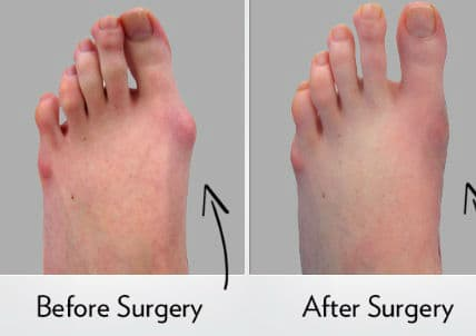 Cinderella Foot Plastic Surgery Before And After 1