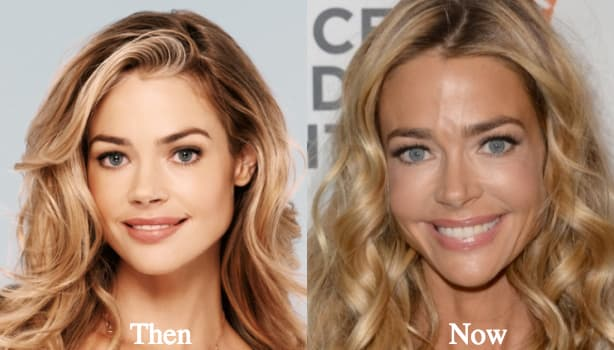 Denise Richards Plastic Surgery Before And After 1