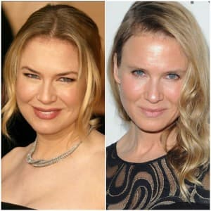 Celebrity Worst Plastic Surgery Before And After 1
