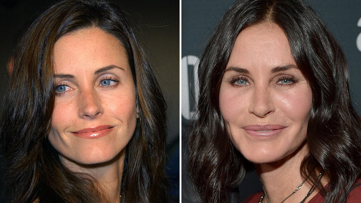 11 Celebrities Before And After Plastic Surgery 1