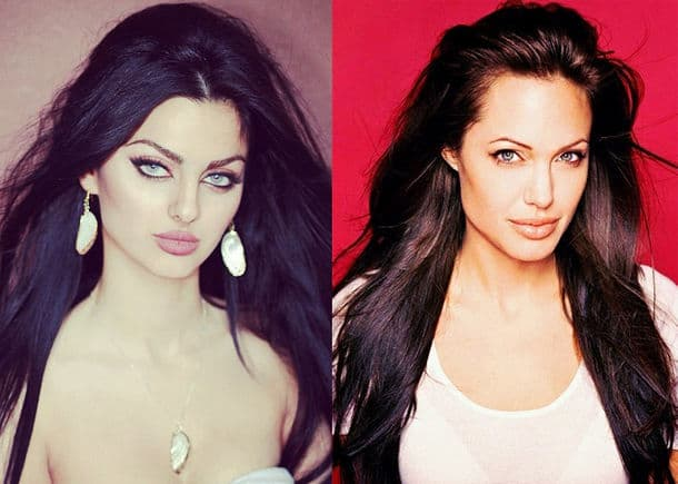 Mahlagha Jaberi Before & After Plastic Surgery 1