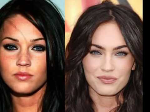 Plastic Surgery Before And After Hollywood Stars 1