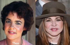 Stella Mccartney Plastic Surgery Before And After 1
