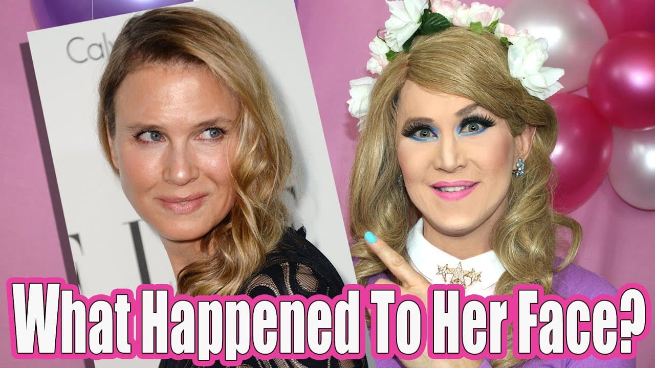 Meghan Trainor Before And After Plastic Surgery 1