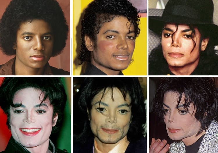 Micahel Jackson Before And After Plastic Surgery 1