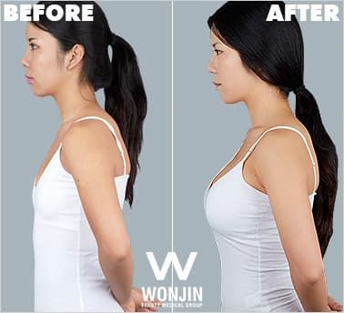 Before And After Pictures Korean Plastic Surgery 1