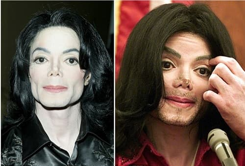 Before And After Plastic Surgery Micheal Jackson 1