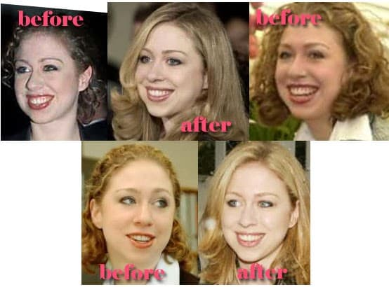 Before And After Plastic Surgery Chelsea Clinton 1
