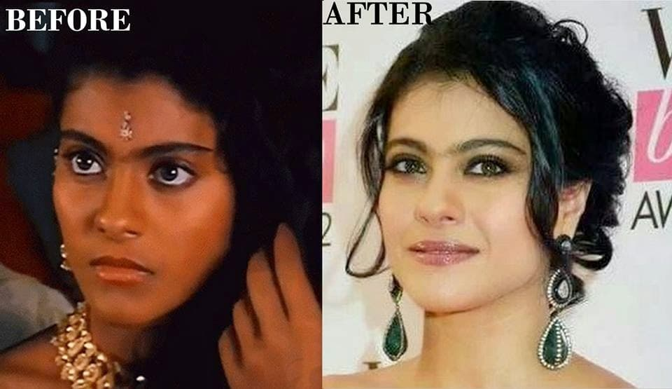 Bollywood Actress Before N After Plastic Surgery 1