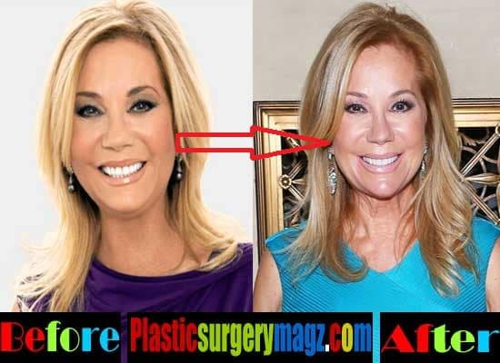 How Do You Feel Before And After Plastic Surgery 1