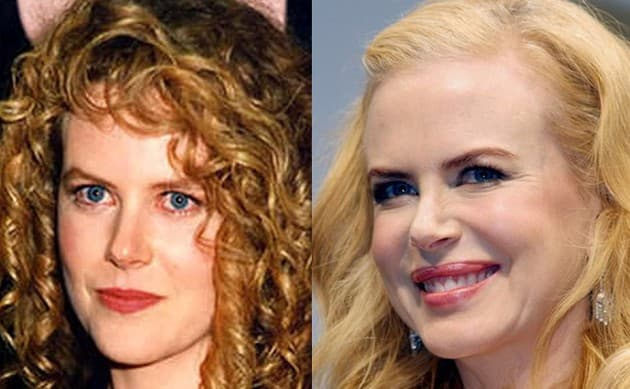 Nicole Kidman Plastic Surgery Before And After 2011 photo - 1
