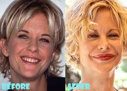 Bad Plastic Surgery Celebrities Before And Afters 1