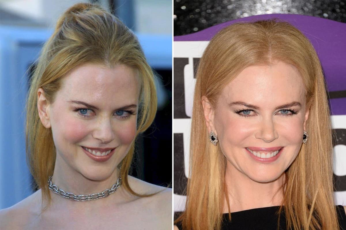Nicole Kidman Plastic Surgery Before After Photos 1