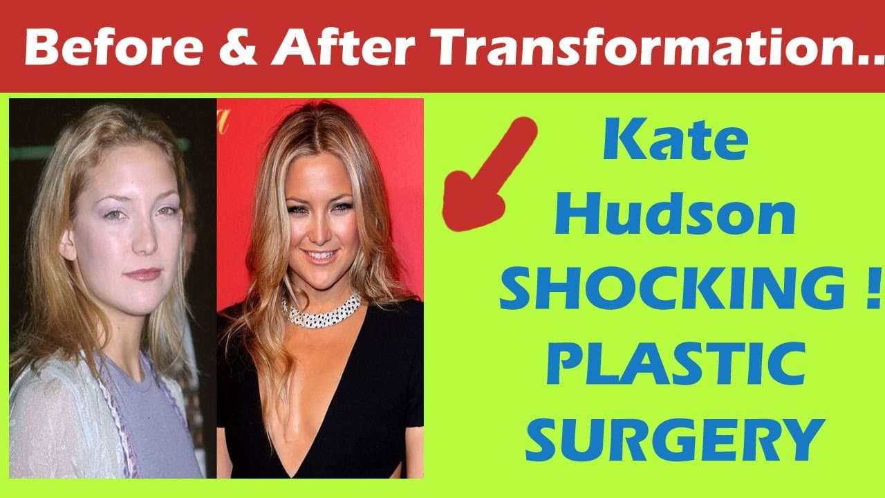 Kate Hudson Plastic Surgery Before And After Face 1