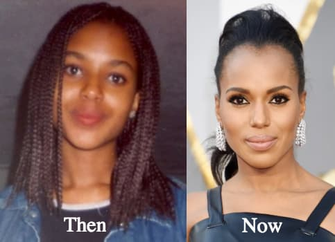 Kerry Washington Before And After Plastic Surgery 1