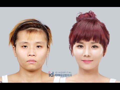 Korean Face Plastic Surgery Nose Before And After 1