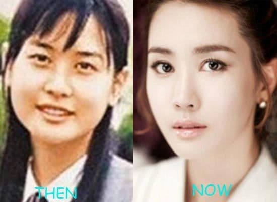 Korean Pop Stars Plastic Surgery Before And After 1