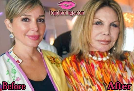 Lisa Real Housewives Miami Before Plastic Surgery 1