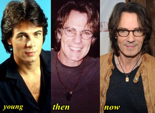Rick Springfield Before And Aftet Plastic Surgery 1