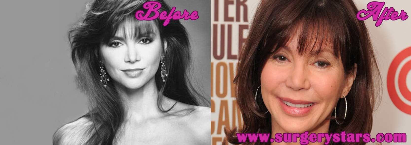 Victoria Justice Before And After Plastic Surgery 1