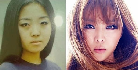 Brown Eyed Girls Before And After Plastic Surgery 1