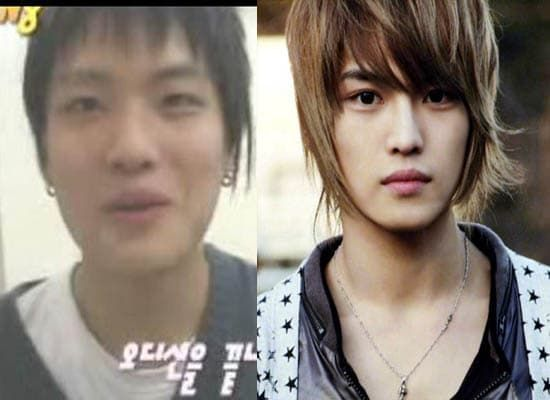 Ikon Korean Band Before And After Plastic Surgery 1