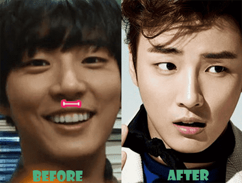 Korean Actresses Before And After Plastic Surgery 1