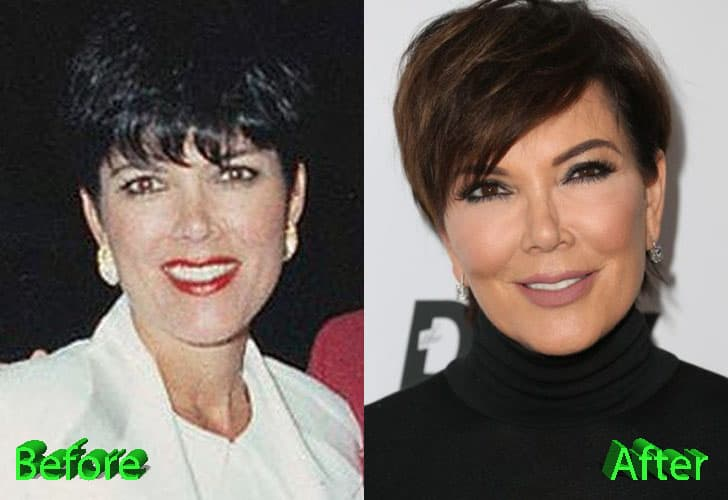 Kris Jenner Before And After Plastic Surgery Pics 1