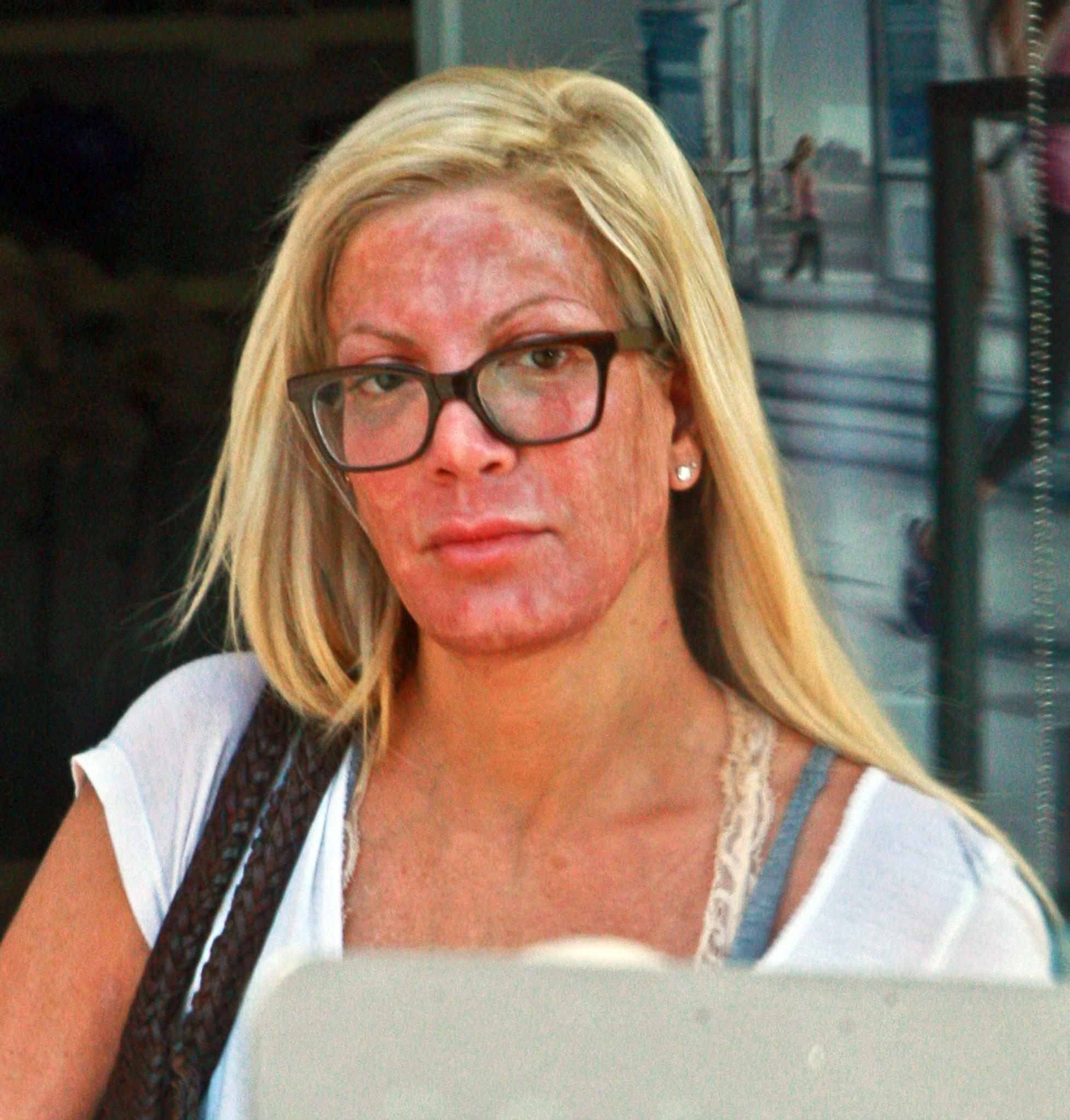 Before And After Plastic Surgery Pics Tori Spelling photo - 1