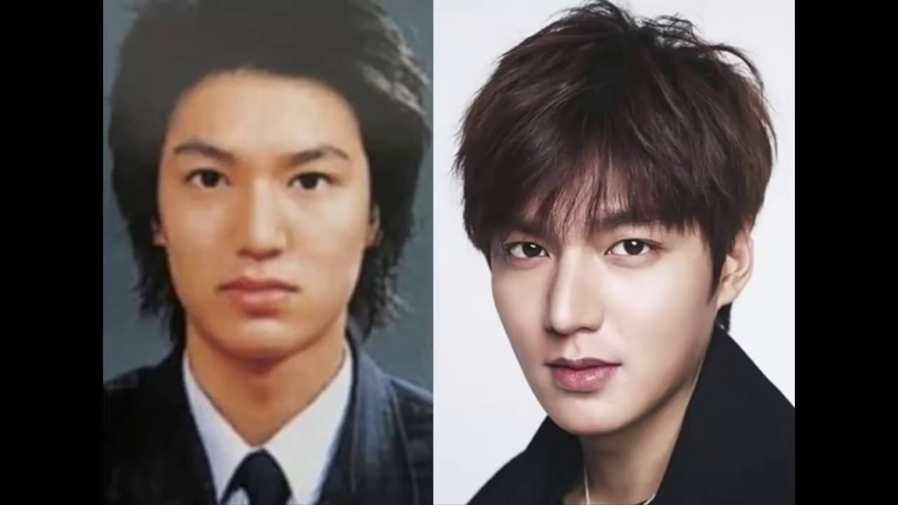 Famous Korean Stars Before And After Plastic Surgery photo - 1