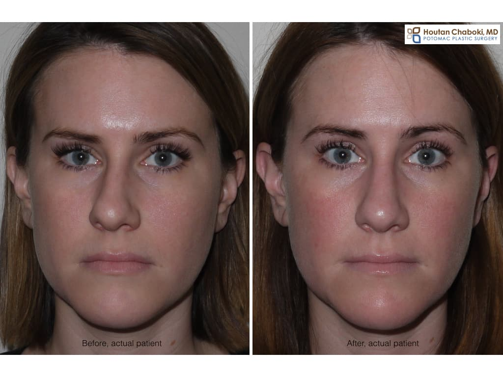 Deviated Septum Plastic Surgery Before And After 1