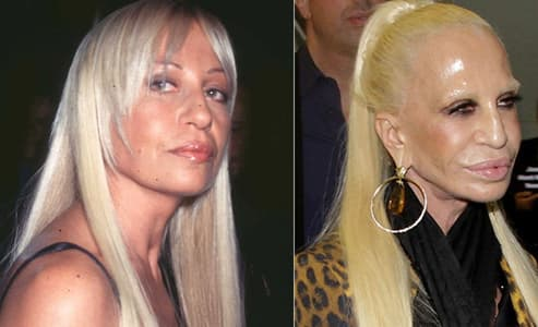 Donatella Versace Before And After Plastic Surgery 1