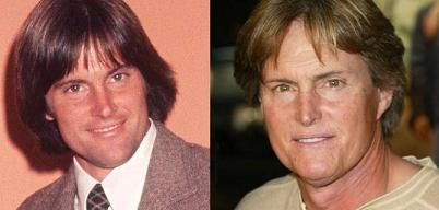 Bruce Jenner Plastic Surgery Before And After 1984 1