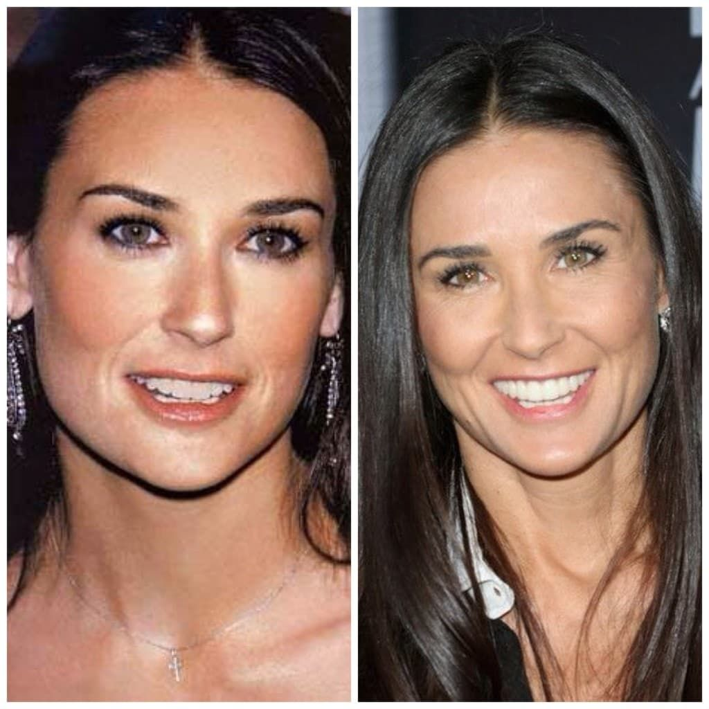 Demi Moore Plastic Surgery Before And After Photo 1
