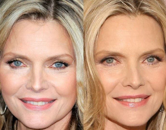 Michelle Pfeiffer Plastic Surgery Before And After 1