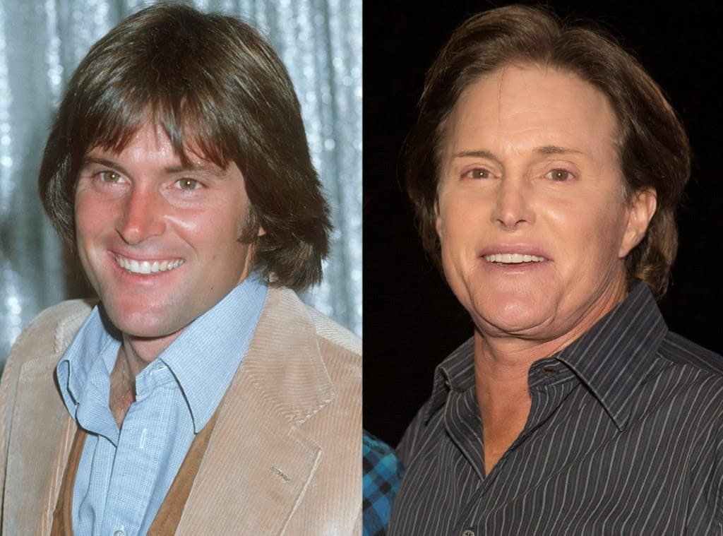 Bruce Jenner Before And After Plastic Surgery Pics 1