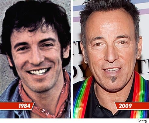 Bruce Springsteen Before And After Plastic Surgery 1