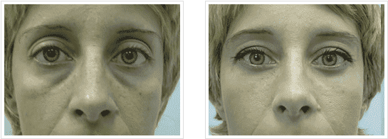 Upper Eyelid Before And After Plastic Surgery Pics 1