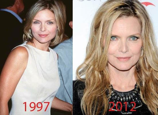 Michelle Pfeiffer Before And After Plastic Surgery 1