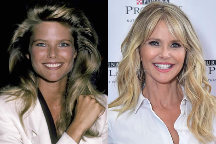 Before And After Plastic Surgery Christie Brinkley 1