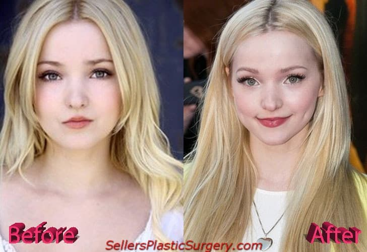 Dove Cameron Face Before And After Plastic Surgery 1